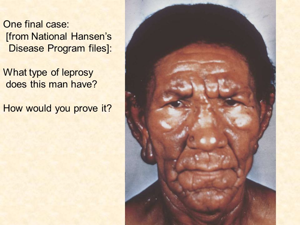 a clinical description of leprosy or hansens disease Hansen's disease (also known as leprosy) is an infection caused by bacteria called mycobacterium lepraethese bacteria grow very slowly and it may take up to 20 years to develop signs of the infection.